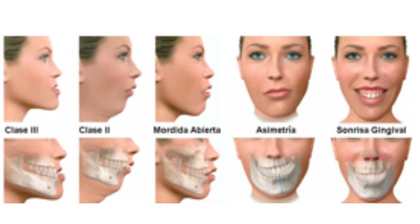 surgery Facial maxillo